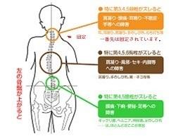 背骨の歪み方 11.jpg